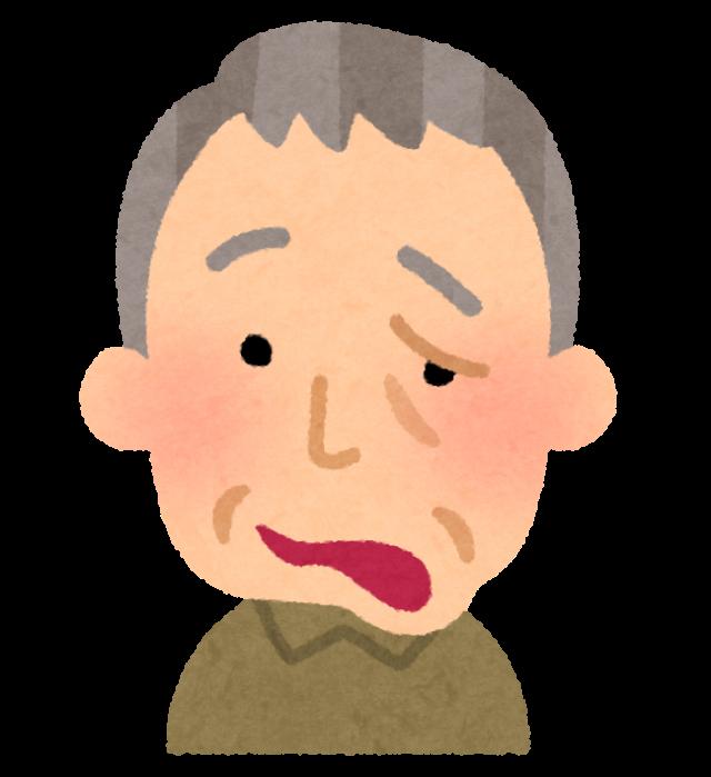 顔面神経麻痺 イメージ